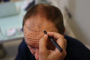 greffe-cheveux-COMBATTRE-la-calvetie
