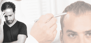 5 Facteurs qui contribuent à une greffe de cheveux échouée