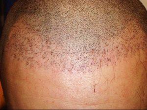 greffe-cheveux-raté