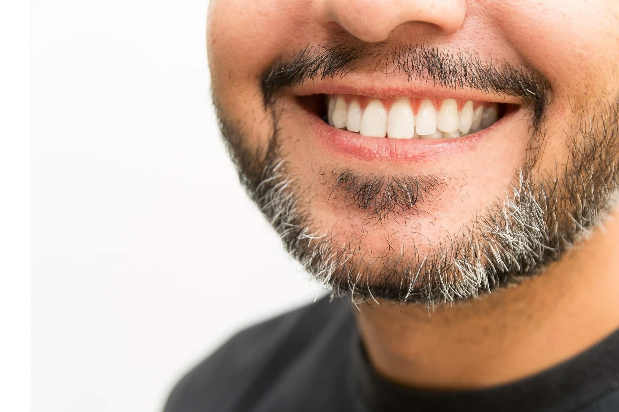Implant de barbe