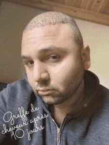 Les croûtes après une greffe de cheveux