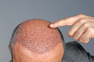 après une greffe de cheveux