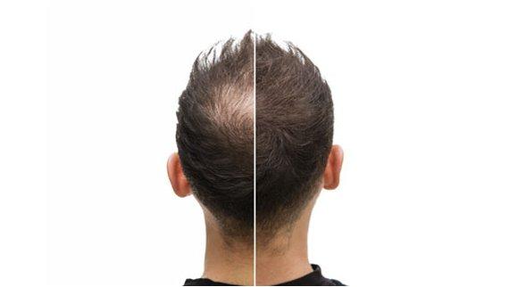 prix d'une greffe de cheveux