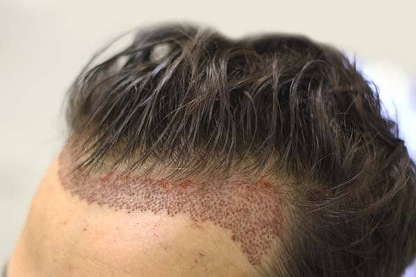 comment se déroule une greffe de cheveux