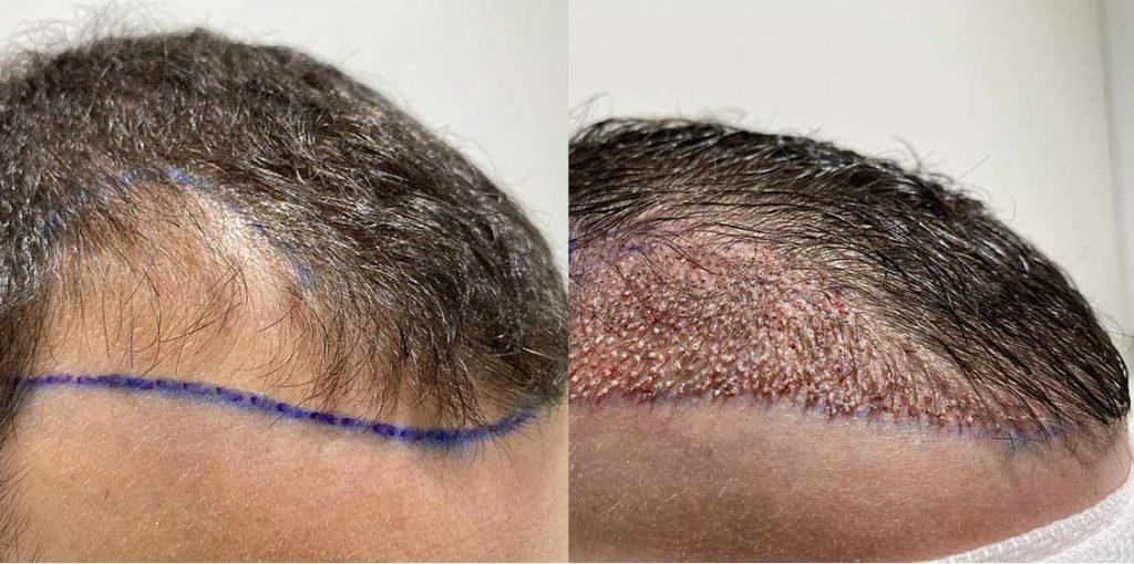 greffe de cheveux mois par mois