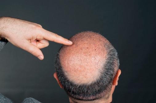 greffe de cheveux synthétiques
