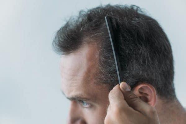 temps de repousse après une greffe de cheveux