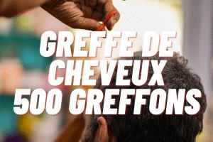 greffe de cheveux 500 greffons