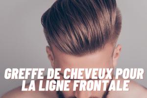 greffe de cheveux pour la ligne frontale